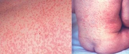 Сыпь на теле у ребенка. Фото с пояснениями.