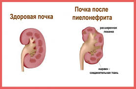 беременность пиелонефрит симптомы