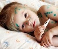 Ветрянка у ребенка: симптомы и лечение (фото)