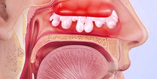 Заложенность носа без насморка: причины, диагностика и лечение