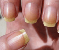 Основные причины появления желтизны на ногтях и способы лечения