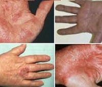 Экзема на руках: виды, признаки, причины и лечение