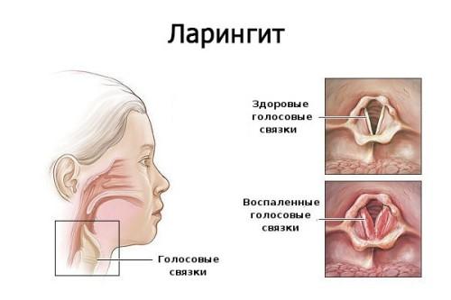 laringit1