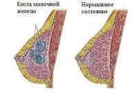 киста молочной железы2