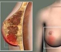 Лактостаз у кормящей матери: причины, симптомы и лечение