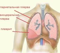 Плеврит легких: симптомы и лечение