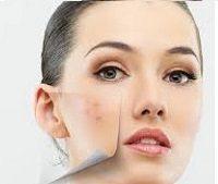 Угревая сыпь на лице: причины и лечение