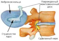 фиброзное кольцо
