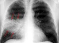 пневмония снимок