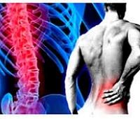Радикулит поясничный: причины, симптомы, лечение, профилактика