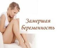Замершая беременность на раннем сроке: причины, симптомы, диагностика, профилактика