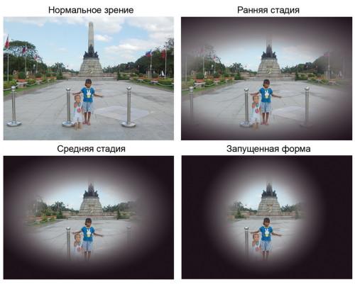 как видит человек с глаукомой1