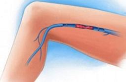 Острый тромбофлебит поверхностных вен