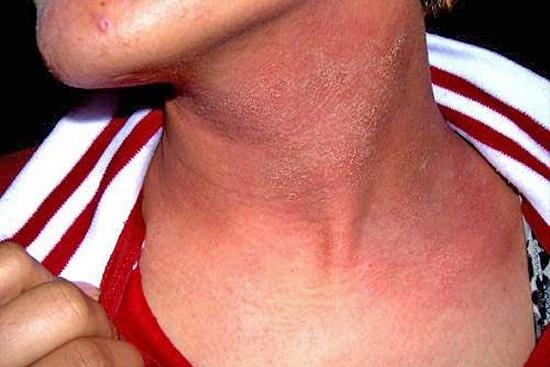 аллергический дерматит на косметику