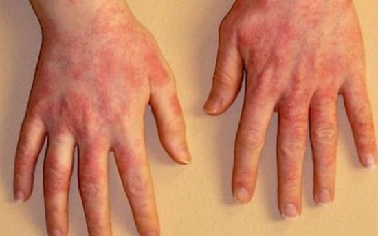 аллергический на моющее1